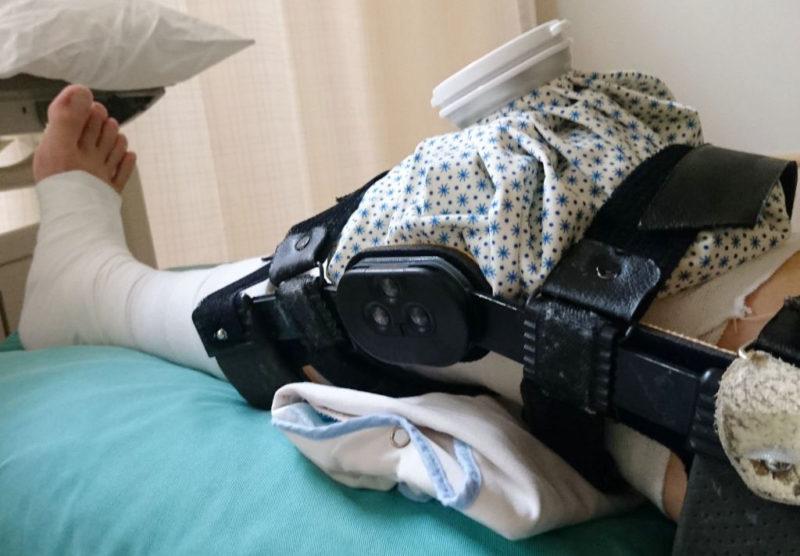 膝のアイシング