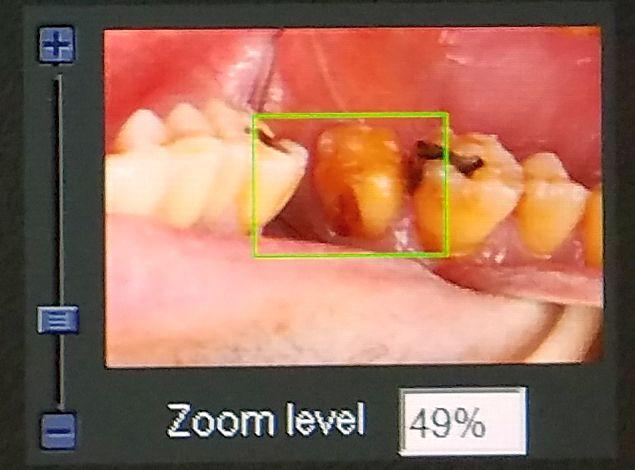 クラウンを外した後の二次虫歯